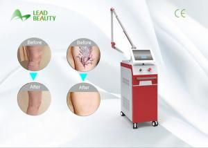 Buy cheap Popular ND yag tattoo machine q-switched nd yag laser tattoo