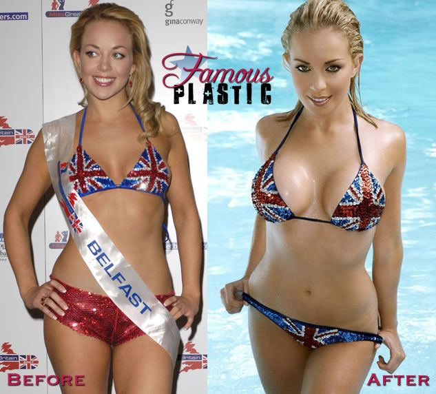 22 Best Celebrity Breast Augmentation Images On Pinterest