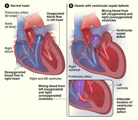 ventricular septal defect- another one of Sean's multiple issues with his heart ...again repaired (partially) during his 1st open heart surgery.