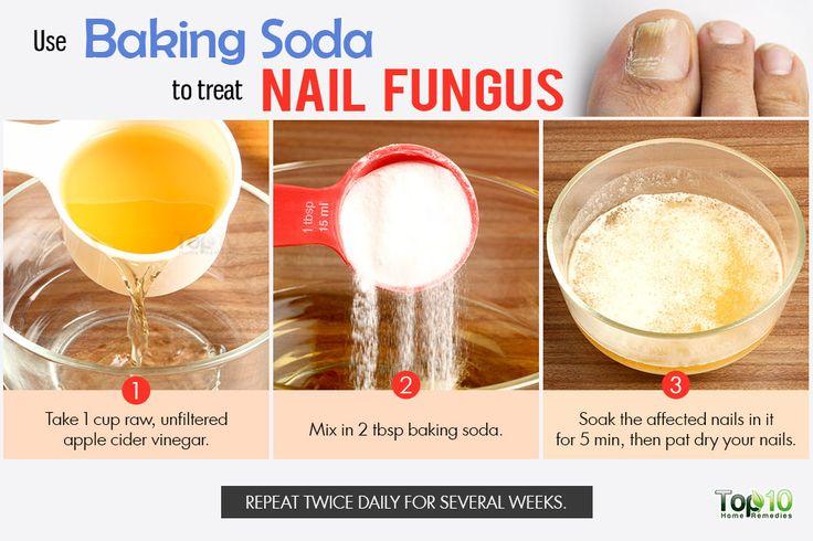 baking soda for nail fungus