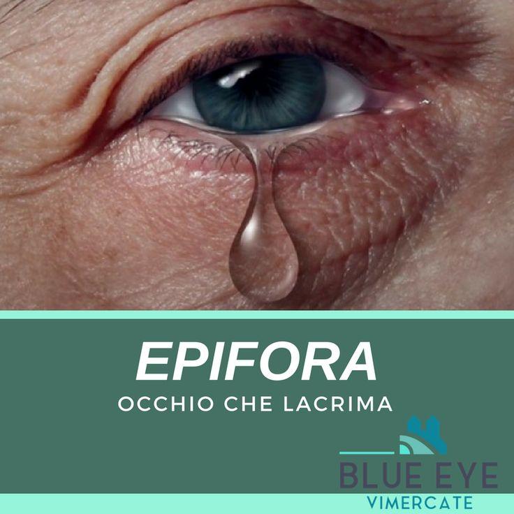 ▶ BLUE EYE CENTER (Centro di Microchirurgia Oculare) ▶ VIMERCATE | MILANO  ▶ EPIFORA Occhio che lacrima  ~~~~~  ▶ EPIFORA è l'occhio che lacrima troppo per effetto di un disturbo oculare o di una condizione morbosa degli occhi. Le cause riconosciute di epifora sono: 1. occlusione o restringimento del sistema che drena le lacrime nel naso; 2. iperproduzione di lacrime; 3. infrequente o impossibile battuta delle palpebre.   ▶ http://blueeye.it/stenosi-vie-lacrimali/   #blueeye #milano…