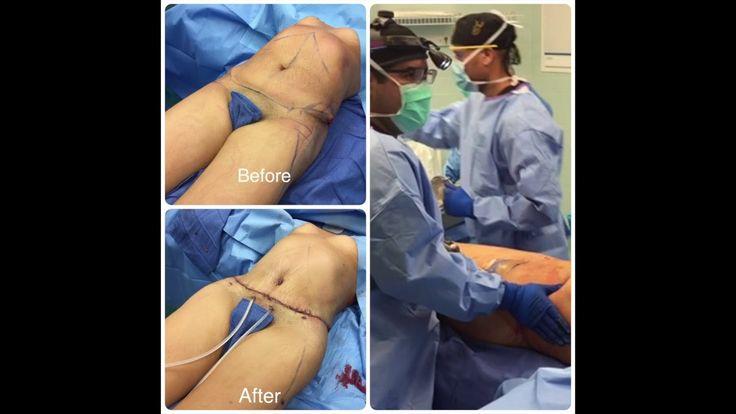Check out Hourglass Tummy Tuck Surgery - Dr. Cortes, Dr. Hourglass, Houston,Dallas,San Antonio,Austin
