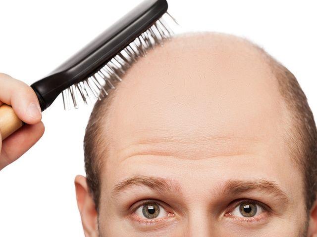 Secrets for Reversing Hair Loss and Balancing Hormones
