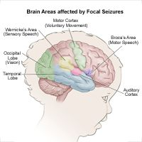 Brain Areas Affected by Focal Seizures