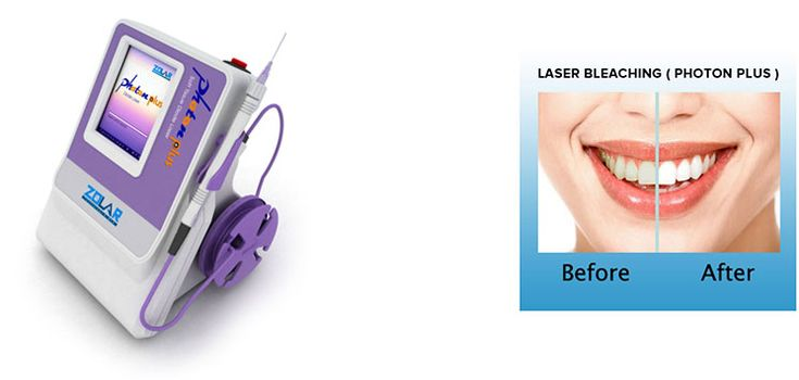 Laser dentistry is used normally by most of the dentistry professionals nowadays for removing those ugly stains as well as for safeguarding the teeth. These treatment procedures are most effective, competent, and painless process suitable for adults. Let's have a look at different advantages of laser dentistry.
