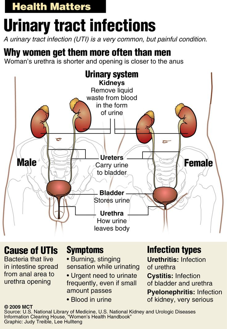 lower urinary tract infections Sections urinary tract infection (uti) and cystitis (bladder infection) in females urinary tract infections (utis) are common in females, accounting for over 6 million patient visits to.