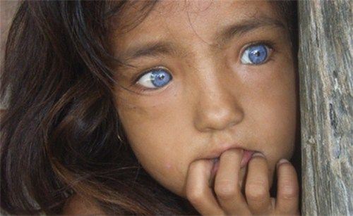 The brilliant blue eyes of a child with Waardenburg ...