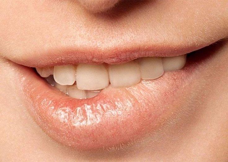 Perawatan Alami dan Ampuh Untuk Cerahkan Bibir Hitammu