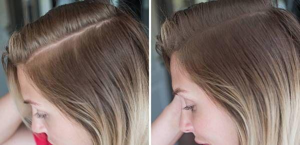 Har ditt huvud börjat bli tunnhårig? OYEZ! ger dig en helt naturlig hårman, som du är fri att styla precis som du själv önskar. SMS: 0708 67 02 77.