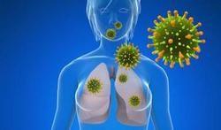 Een longontsteking of pneumonie is een ernstige infectieziekte die het longweefsel aantast. Een pneumonie ontstaat meestal nadat micro-organismen (bacteriën, virussen, schimmels...) door inademing in de longen zijn terechtgekomen.