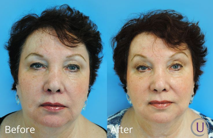 She was unhappy with the wrinkles on her jaw line and around her lower mouth. 2 weeks post Juvederm to those areas.