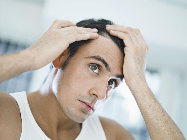 Descubra agora quais são os 5 tipos de alopecia existentes e as 4 maiores causas da queda de cabelo e como elas ocorrem.