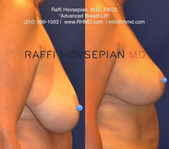 Putain elle boob lift before and after photos older guy