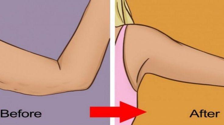 Μήπως πρόσφατα χάσατε πολλά κιλά; Αυτό είναι υπέροχο, αλλά πολλές φορές η μεγάλη απώλεια κιλών έχει ως αποτέλεσμα, επιπλέον χαλαρό δέρμα, ειδικά στα χέρια σας, και έχετε δουλέψει πολύ σκληρά για να τα παρατήσετε τώρα.