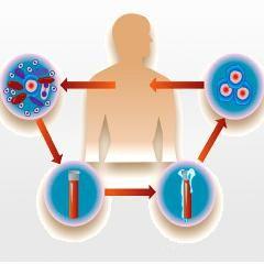 Sclérose en plaques: impressionnant succès d'un traitement très risqué de cellules souches | Psychomédia