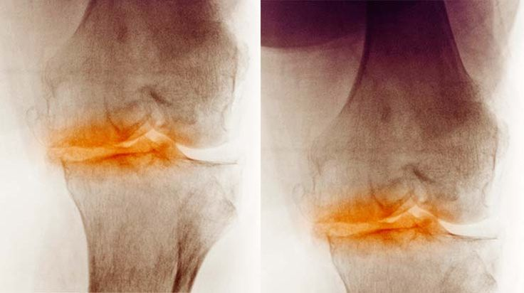 Treatment for osteoarthritis  http://www.clinicaltrialsmagazine.com/exploring-treatment-options-for-osteoarthritis/