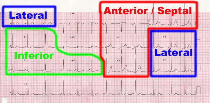 heart walls on ekg | clinical junior.com - ECG EKG Interpretation basics how to read MI ...