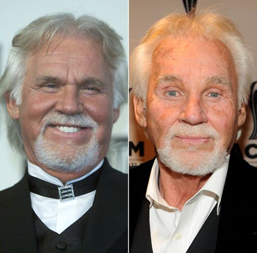 botched+plastic+surgery | Chatter Busy: Kenny Rogers Bad Plastic Surgery