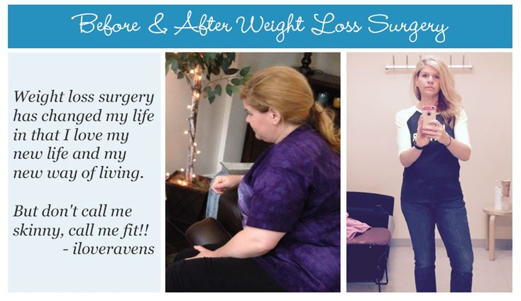 Today we're celebrating, OH Member iloveravens, by sharing her before & after weight loss surgery photos!