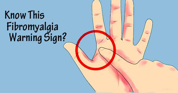 How To Tell If A Person Has Fibromyalgia
