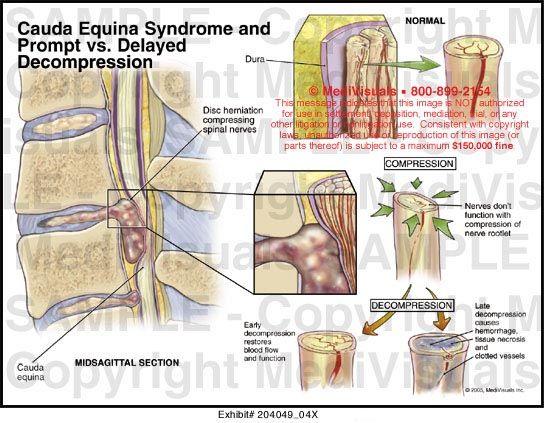 Cauda Equina Syndrome & Prompt vs. Delayed Decompression Medivisuals