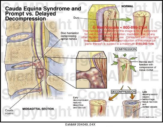 Cauda Equina Syndrome & Prompt vs. Delayed Decompression Medivisuals