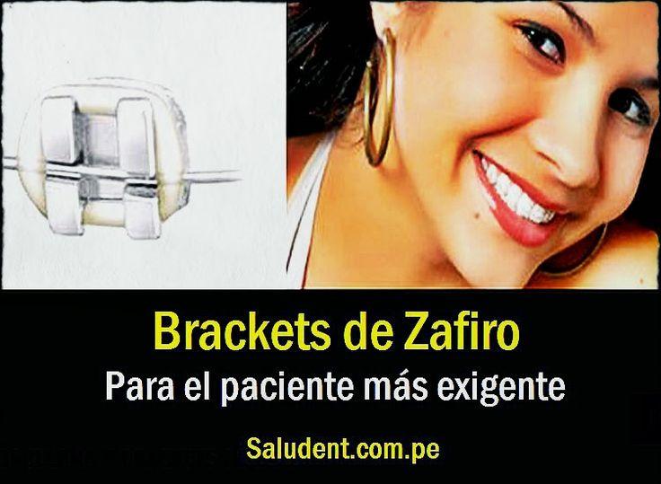 Brackets de Zafiro, para el paciente más exigente - Saludent | Directorio Odontológico