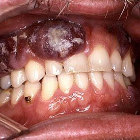 17 Best images about mouth sores on Pinterest | Macro ...