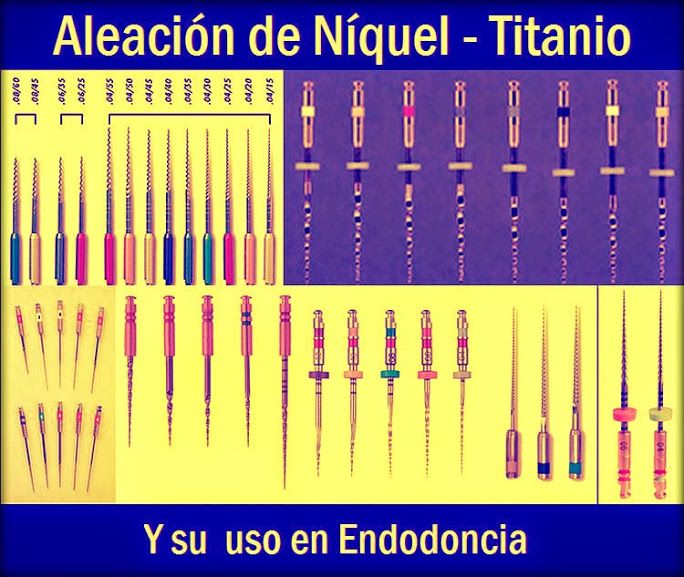 Aleación de Níquel - Titanio: y su uso en Endodoncia   OVI Dental