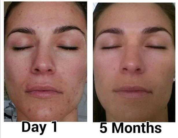 Real results with nerium Wow 5 months after a life of dealing with acne and pigmentation issues. Its a no brainer.