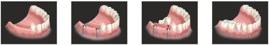 If there are multiple missing teeth, then we can place lesser number of implants which then supports multiple teeth such as bridges or dentures.
