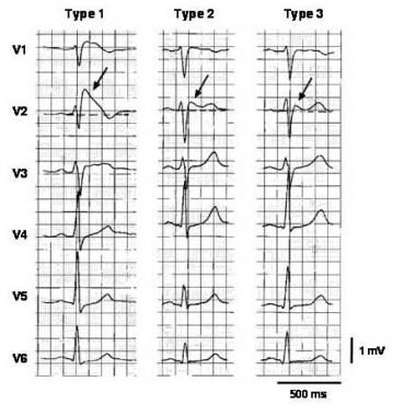 Three types of ST-segment elevation in Brugada syndrome  http://emedicine.medscape.com/article/163751-overview#a1