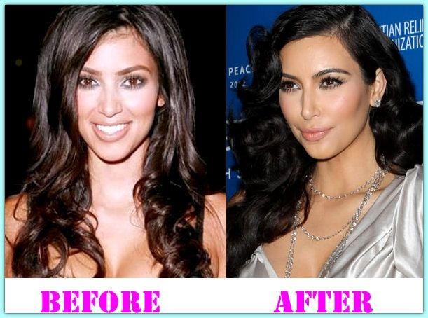Kim Kardashian Breast Implant Kim Kardashian Plastic Surgery Before And After Kim Kardashian