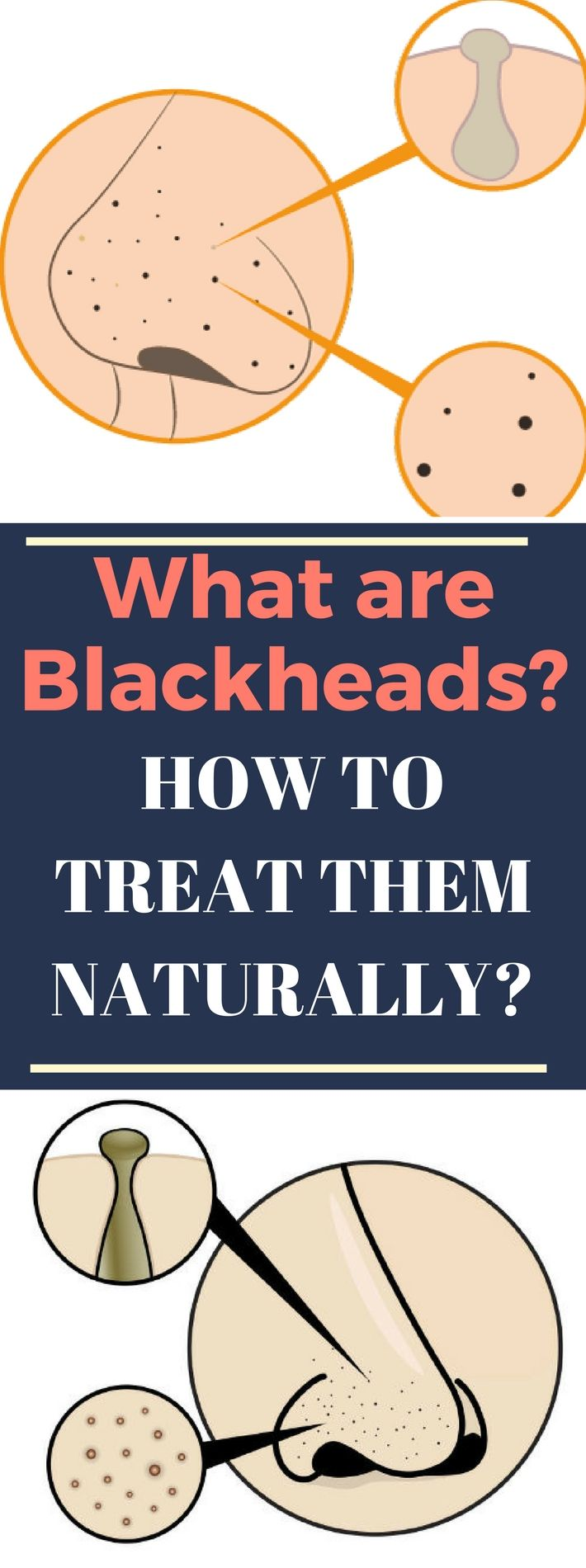 What are Blackheads and How to Treat Them Naturallyy.. Need to know..!???