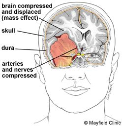 brain tumor facial swelling