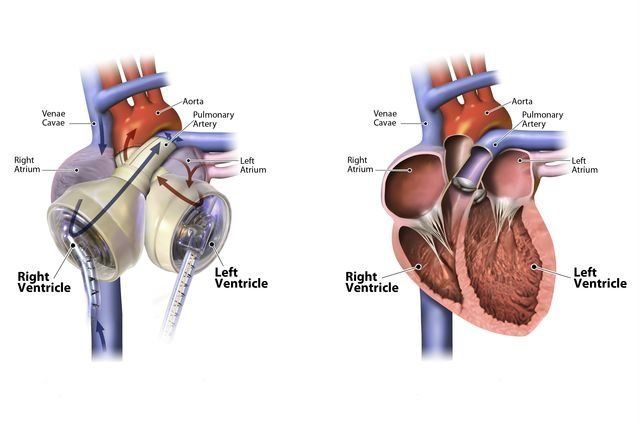 Successful heart transplant after using experimental artificial heart -- ScienceDaily
