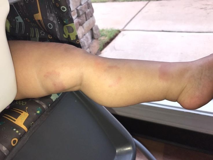 Mom outraged after daughter bitten several times at Columbus day - WTVM.com-Columbus, GA News Weather & Sports