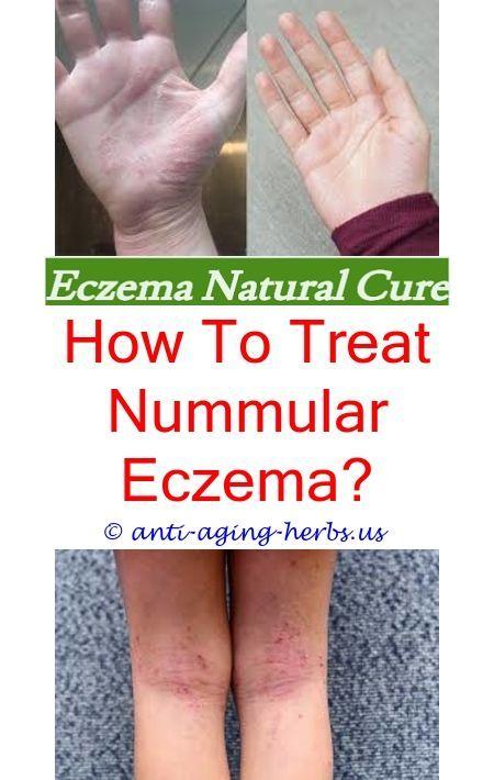Can, too eczema facial treatment