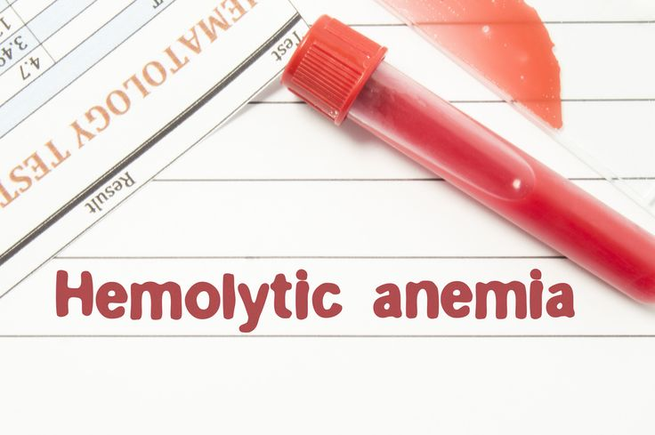Hemolytic anemia is a dangerous complication of autoimmune diseases. Here's what you need to know, including how to treat it.