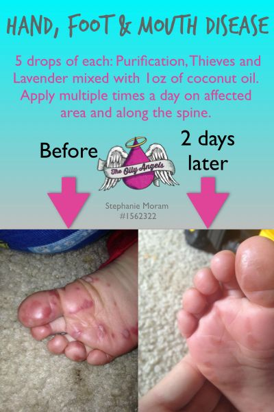 Natural Remedy for Hand, Foot and Mouth Disease - Just in case, this is going around!