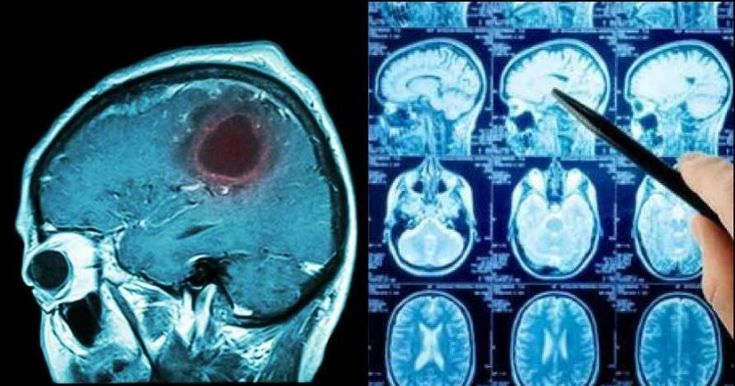 how to detect brain tumor early