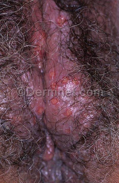 Penis in vagina xray