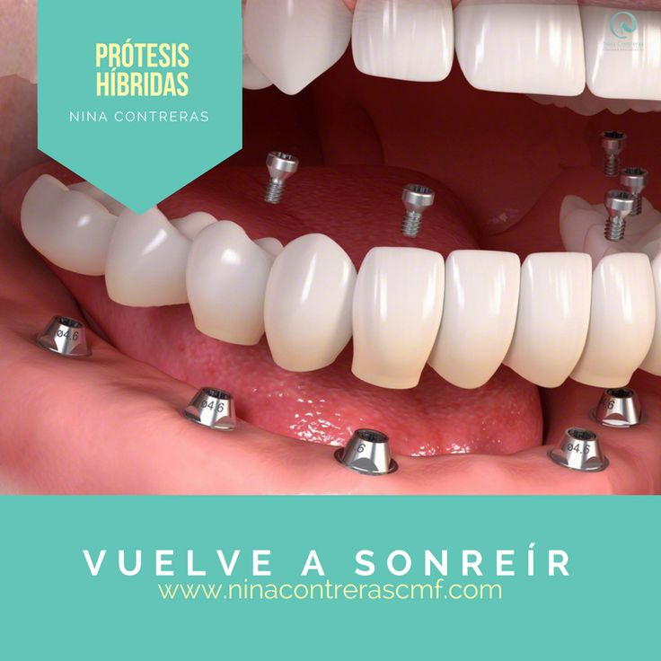 Vuelve a Sonreír  ✅Sonríe de Forma Natural ✅Luce una Sonrisa que Robe Miradas ✅Le Damos Forma a una Sonrisa BELLA Agenda tu #cita ya: ☎️ 6571629  300 8934528 #implantesdentales #ortodoncia #diseñodesonrisa #dentalimplants #orthognathicsurgery #surgery #maxillofacialsurgery #orthodontics #smiledesign #smile #teethwhitening #teeth #oralrehabilitation #bichectomy #ninacontreras http://ninacontrerascmf.com/
