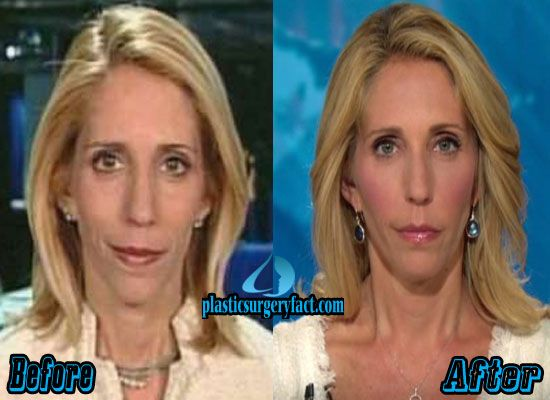 Dana Bash Facelift Before and After | http://plasticsurgeryfact.com/dana-bash-plastic-surgery-before-and-after/