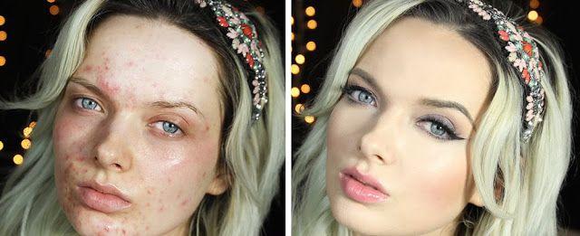 La blogueuse beauté EM Ford - atteinte d'acné sévère - répond avec émotion à ses haters