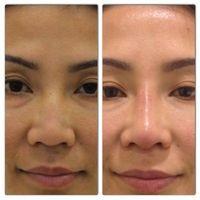Re shape nose best options