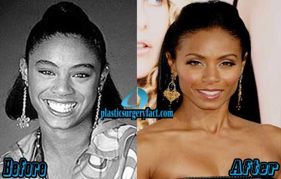 Jada Pinkett Smith Botched Plastic Surgery | http://plasticsurgeryfact.com/jada-pinkett-smith-plastic-surgery-before-and-after-photos/