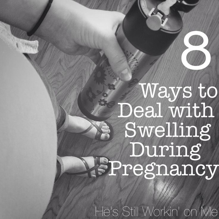 8 Ways to Deal with Swelling During Pregnancy | He's Still Workin' on Me
