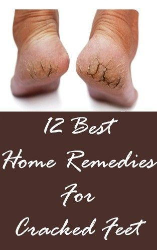 12 Best Home Remedies For Cracked Feet | Styles Rage