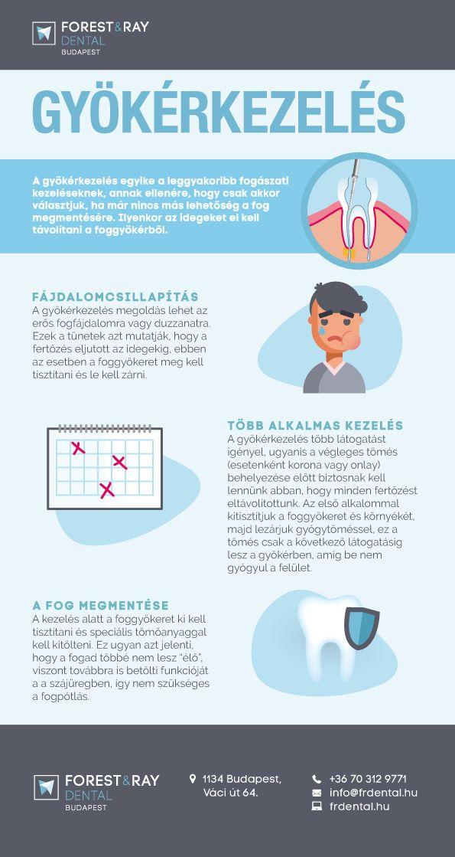 Infografikánkból megtudhatod, mikor van szükség gyökérkezelésre, és milyen lépésekből áll egy ilyen kezelés. #fogászat #fogorvos #fog #gyökérkezelés